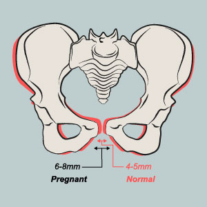 Pain in hip and back in pregnancy